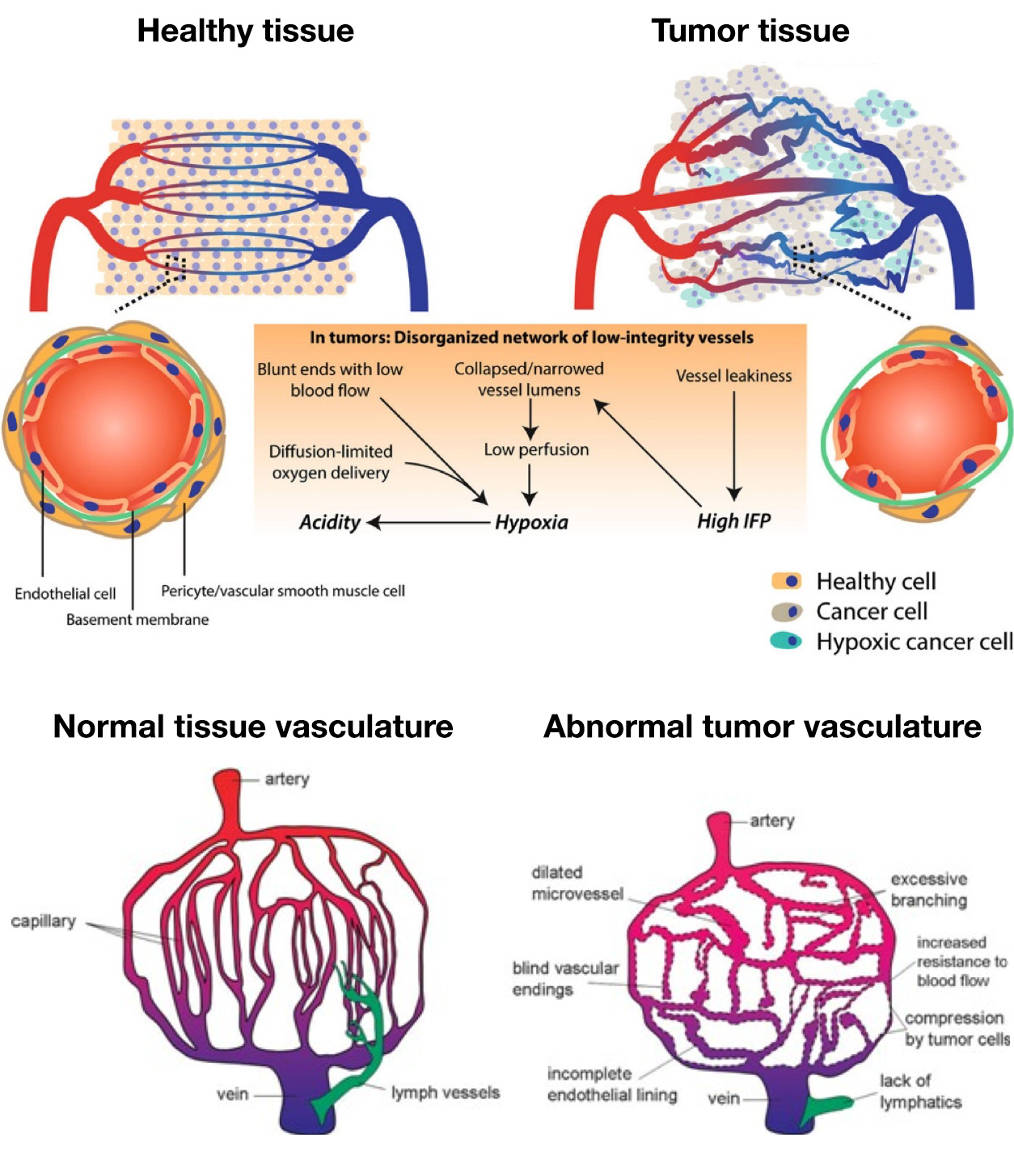 s1p Schematic representation of tumor vasculature abnormalities
